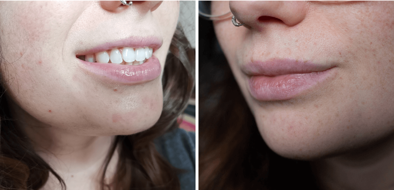 My Lip Filler Experience at Elegance Aesthetics